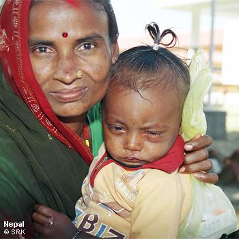 Swiss Red Cross Giving the Gift of Eyesight